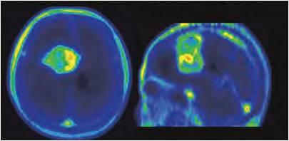 神経膠芽腫のアクアポリン4PET分子イメージング