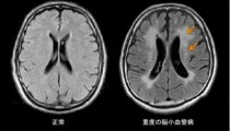 脳小血管病の新たな発症メカニズムを解明